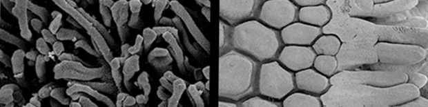 A scanning electron microscope image of the clingfish's hexagonal pads and microvilli